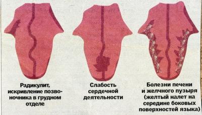 Кондиломы остроконечные перианальные